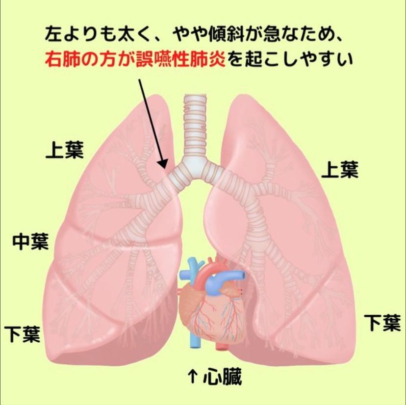 誤嚥性肺炎(ごえんせいはいえん)とは、いったいどの様な病気なのか。